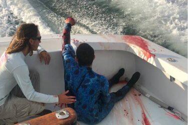 Imagens fortes: mergulhador é salvo após ataque de tubarão