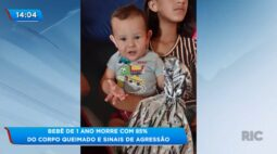 Bebê de  1 ano morre com 85% do corpo queimado e sinais de agressão