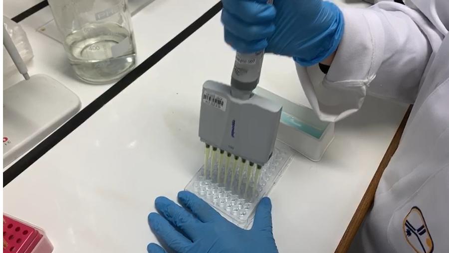 Cientistas brasileiros desenvolvem teste inovador para a COVID-19