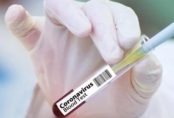 cientistas-chineses-anticorpos-combatem-novo-coronavirus