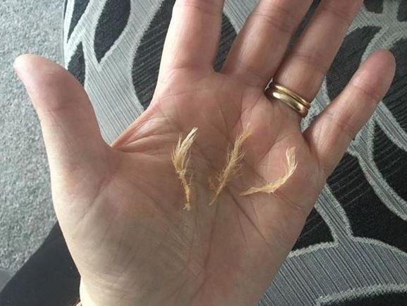 Cliente encontra penas de frango em sua refeição; veja!
