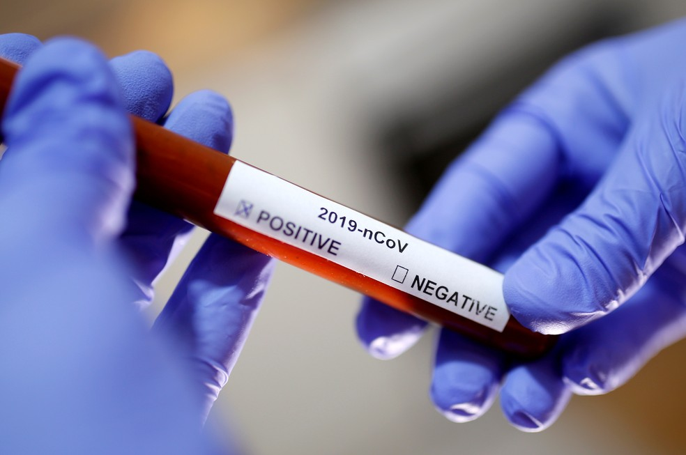 coronavirus-exame-recuperados-brasil