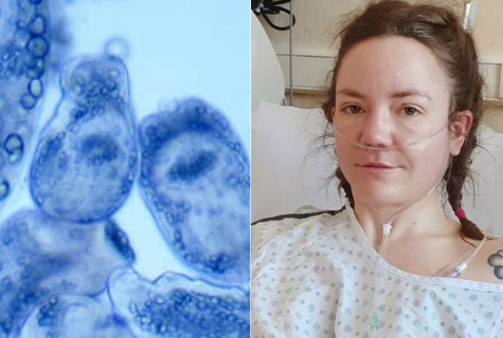 Mulher descobre que tumor fatal era verme gigante em seu fígado