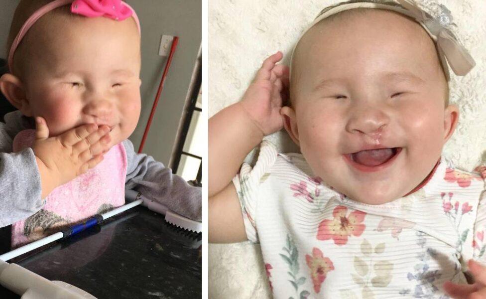 Ponta Grossa se mobiliza para ajudar bebê que nasceu sem os olhos