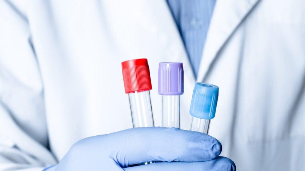 Itaú, Bradesco e Santander vão comprar 5 milhões de testes rápidos do novo coronavírus