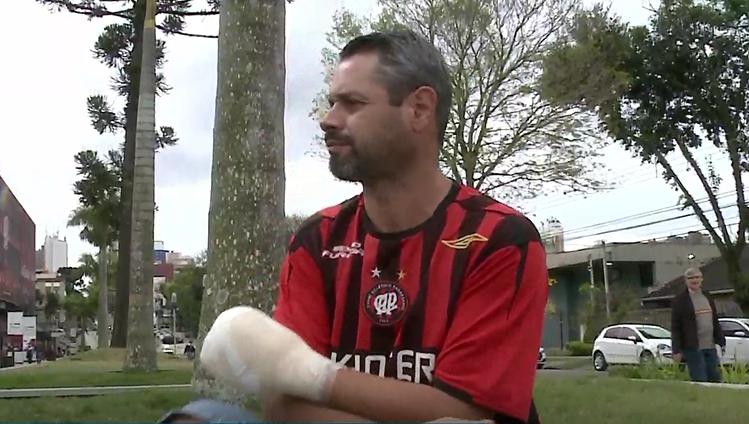 """""""Foram apenas quatro dedos, ainda tenho minha vida"""" diz torcedor que perdeu parte da mão"""