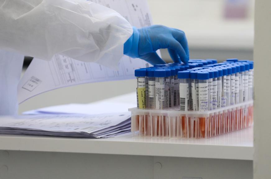 Em uma semana, casos de coronavírus sobem 60% e mortes caem 23%, no Paraná