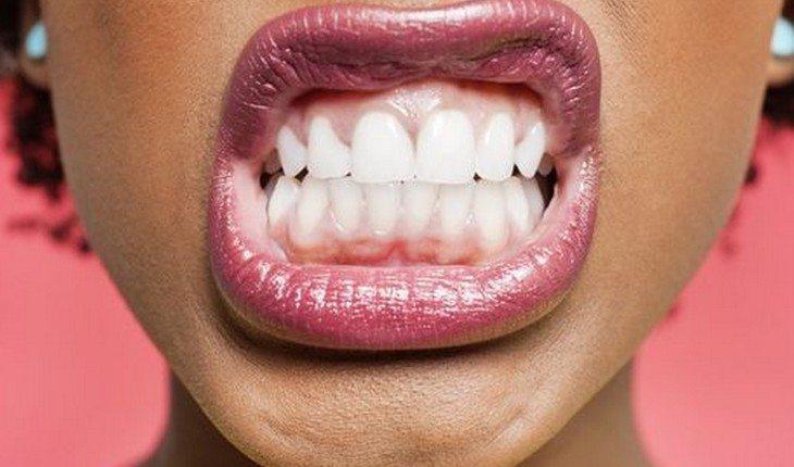 O que significa sonhar com dente   Confira os significados