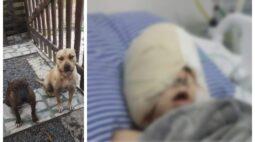 """""""Achei que ia ver Deus"""", diz criança atacada por cachorro no Paraná"""