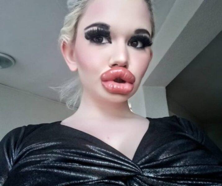 Barbie humana faz 20 operações na boca para quebrar recorde
