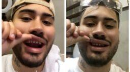 Kevinho mostra dentes sem lente de contato e choca web