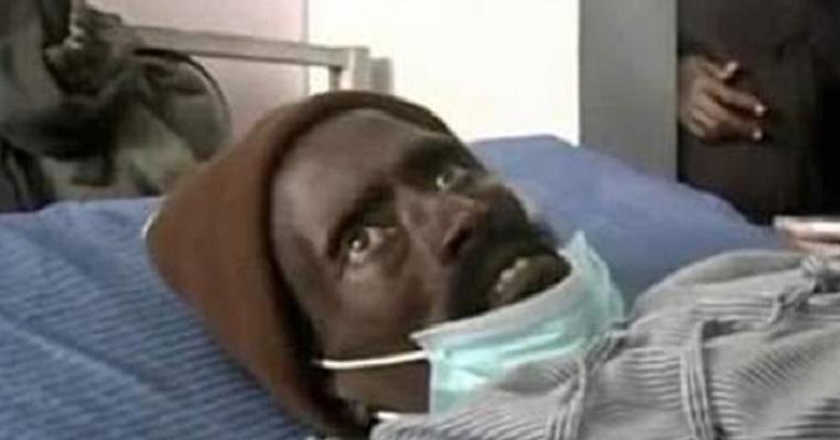 SUSTO! Homem declarado morto acorda no necrotério enquanto era preparado para o enterro