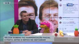 Nelson Rubens faz harmonização facial e posta antes e depois no Instagram