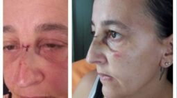 Mulher é atacada com bexiga d'água, leva dois pontos e pega infecção ocular
