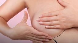 Entenda quais são os direitos das mulheres com câncer de mama