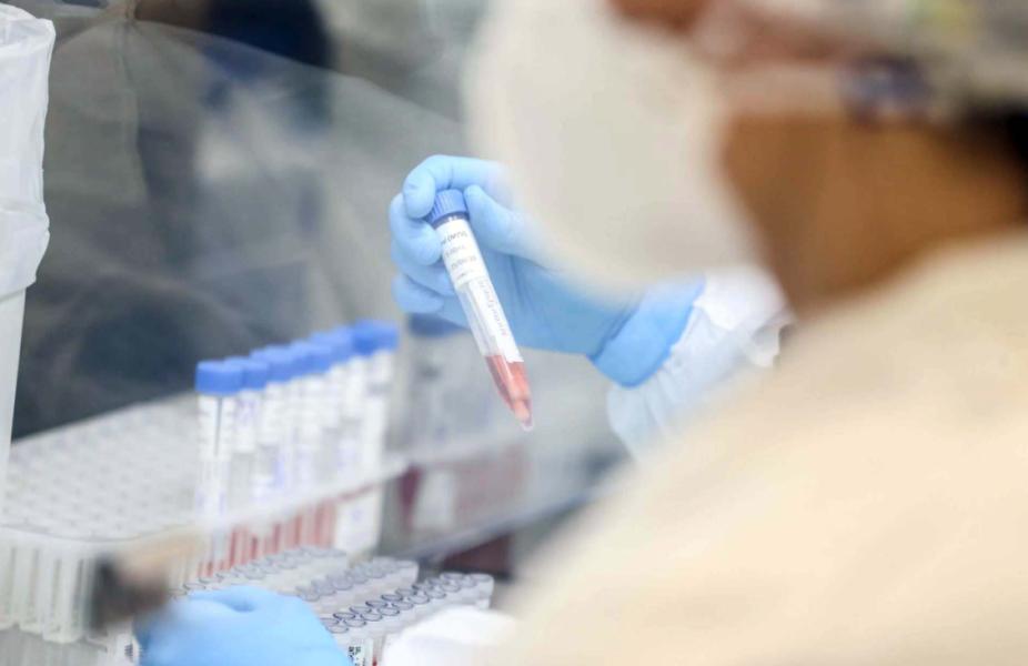 Paraná confirma mais 17 casos de variantes da covid-19