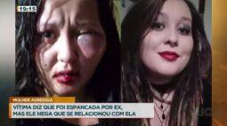 Mulher diz que foi desfigurada por homem com quem se relacionava