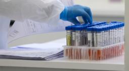 Paraná confirma 2.692 novos casos de covid-19 e 73 óbitos pela doença