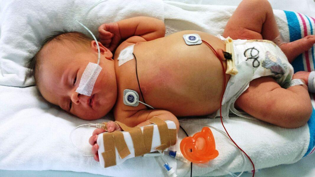 Brasil registra um dos maiores índices de bebês mortos pelo novo coronavírus