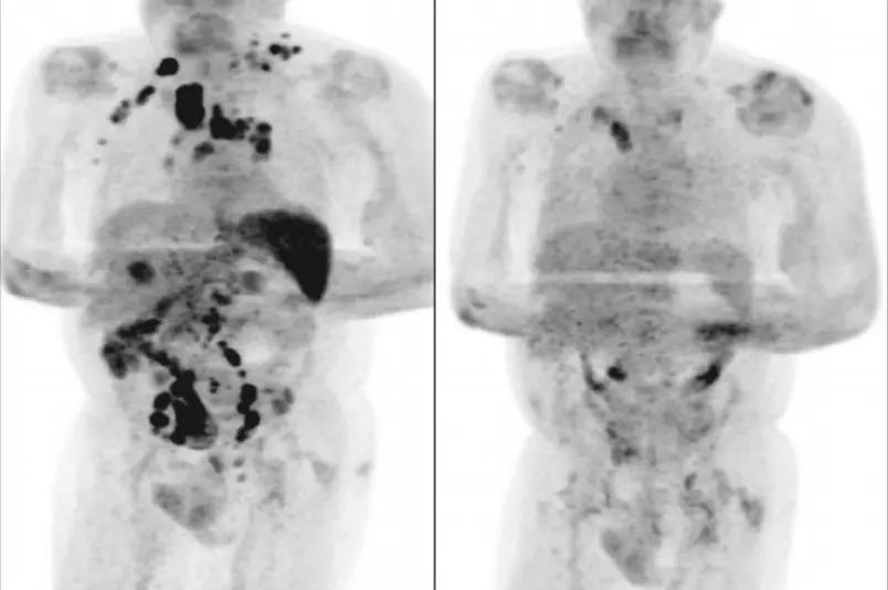 Homem contrai Covid-19 e tem redução de câncer em estágio avançado