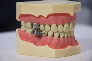 Pesquisadores criam dispositivo para emagrecer: ele impede a boca de abrir