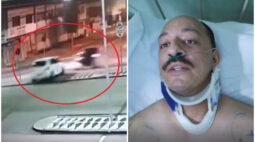 """Motoboy atropelado na Sete de Setembro tem mais de 10 fraturas: """"Logo estou na área de novo"""""""