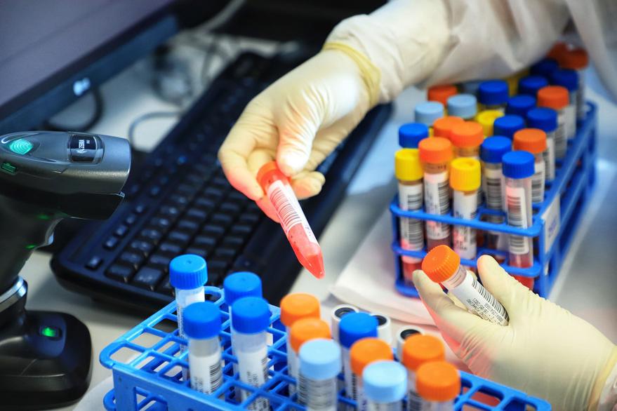 Sesa divulga 187 novas mortes por Covid-19 e mais 3.991 casos da doença