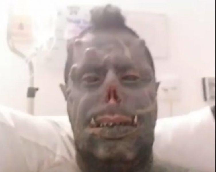 """""""Graças a Deus"""", comemora 'diabão' brasileiro após complicações em cirurgia"""