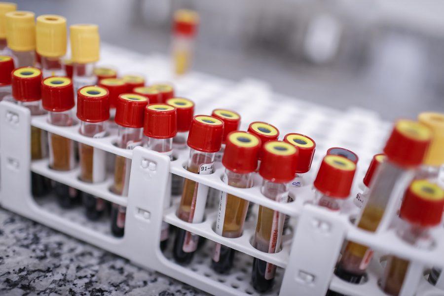 Ministério da Saúde fará coleta para exame da Covid-19, em Araucária