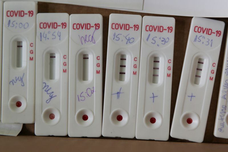MP de Brasília prende secretário de Saúde em operação contra fraude na compra de testes da Covid-19