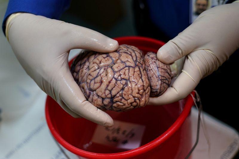 Impacto da Covid em funções cognitivas pode equivaler a envelhecimento de 10 anos do cérebro, sugere estudo